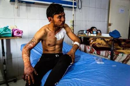 صور تظهر استخدام تركيا للفوسفور الأبيض ضدَّ الأكراد.. ومطالبات لإجراء تحقيق أممي
