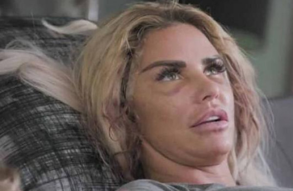 عارضة أمريكية أنفقت ثروتها على التجميل والنتيجة وجه مشوّه