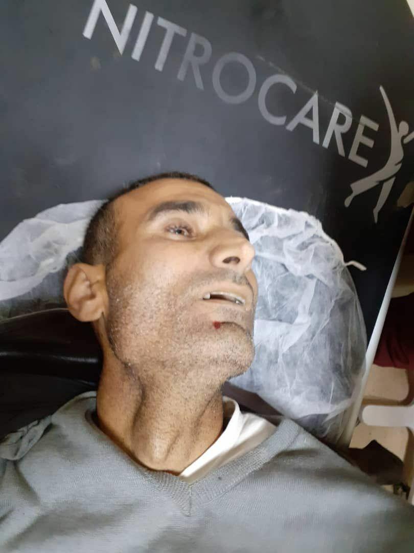 عاجل|| مقتل مدني وإصابة آخر برصاص الشرطة المدنية في مدينة الباب شمالي حلب.. والتفاصيل!