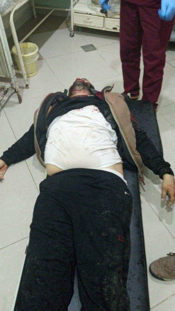 قتلى وجرحى نتيجة اشتباكات بين عناصر أحرار الشرقية والشرطة المدنية في الباب بريف حلب
