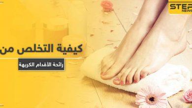 كيفية التخلص من رائحة الأقدام الكريهة.. إليك 11 علاجاً فعالاً