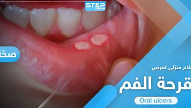 علاج قرحة الفم في المنزل.. إليك الطريقة و7 نصائح هامة