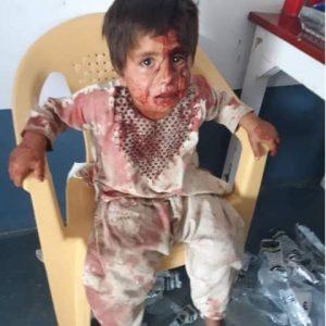 بالفيديو   عشرات القتلى والجرحى بهجوم صاروخي جنوبي أفغانستان.. وطالبان تتبادل اللوم مع الحكومة