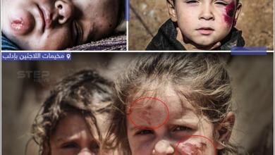 انتشار داء الليشمانيا بين اللاجئيين السوريين في مخيمات النزوح بإدلب