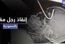 بالصور|| إنقاذ رجل مقيم بالسعودية دخل سيخ تعليق الأضحية بعينه إلى جمجمته