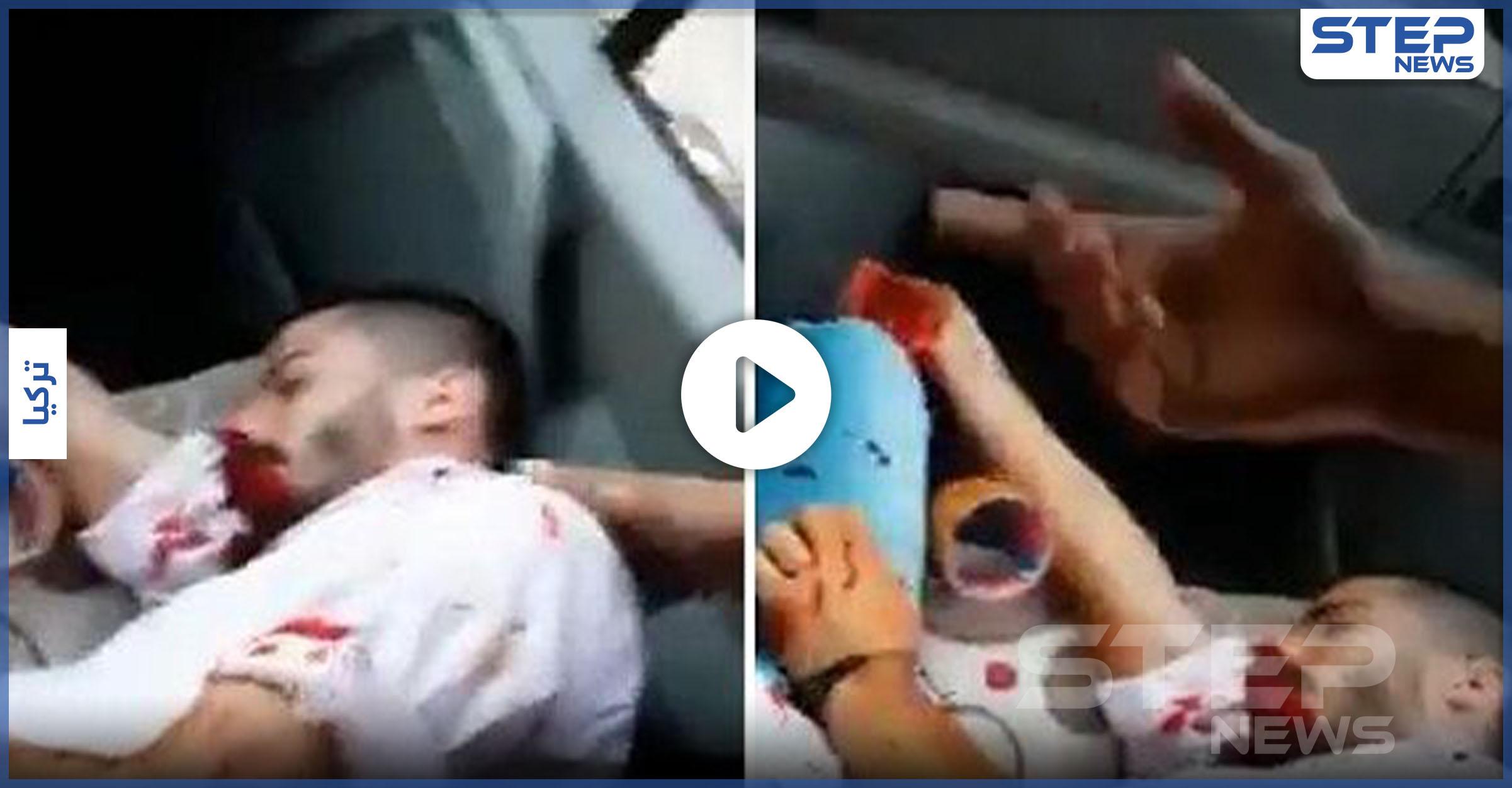 """في أضنة.. بـ""""العصي والسكاكين"""" أتراك يعتدون على 5 فتيات وشبان سوريين"""