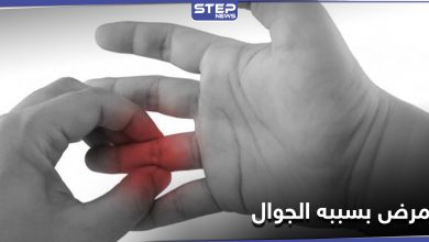 Finger joint inflammation