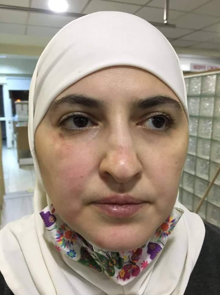 أتراك يعتدون على سيدة سورية ويخلعون حجابها