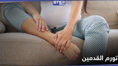 تورم القدمين أثناء الحمل وأفضل النصائح لمنع حدوثه