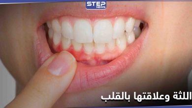 علامات تحذيرية غير معروفة موجودة في الفم قد تكشف أمراض القلب مبكراً