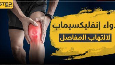 arthritis 207022021