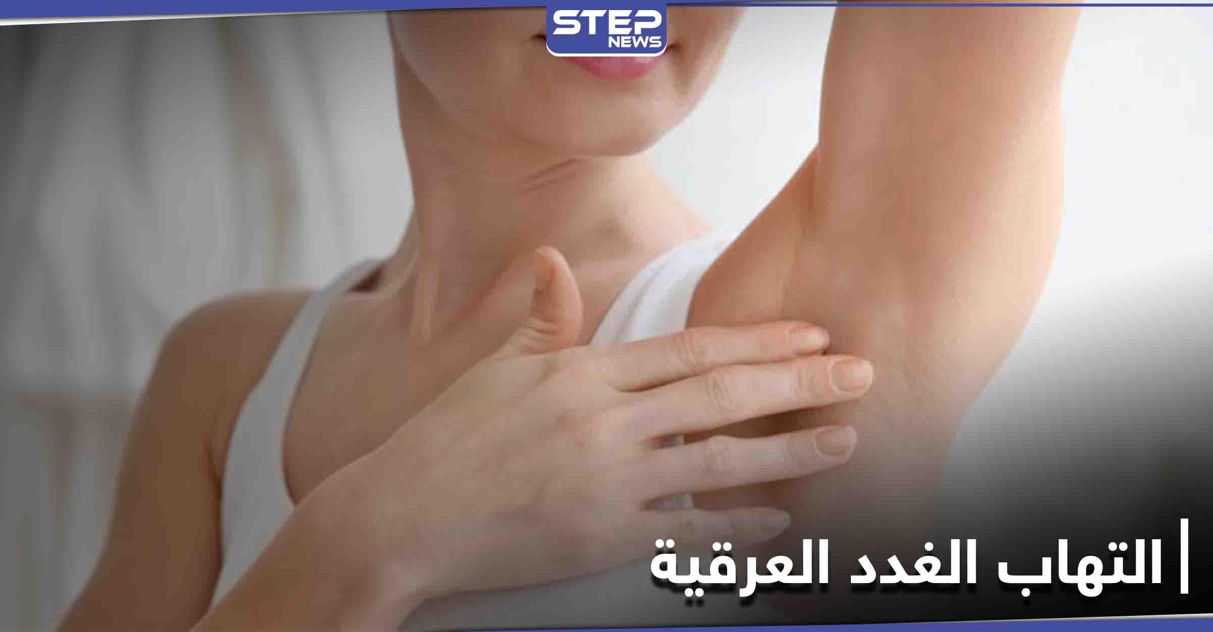 متى يحتاج التهاب الغدد العرقية إلى الجراحة تعرف إلى أعراضه وطرق العلاج
