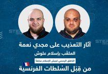 """آثار التعذيب على مجدي نعمة الملقب بـ """"إسلام علوش"""" من قبل السلطات الفرنسية"""