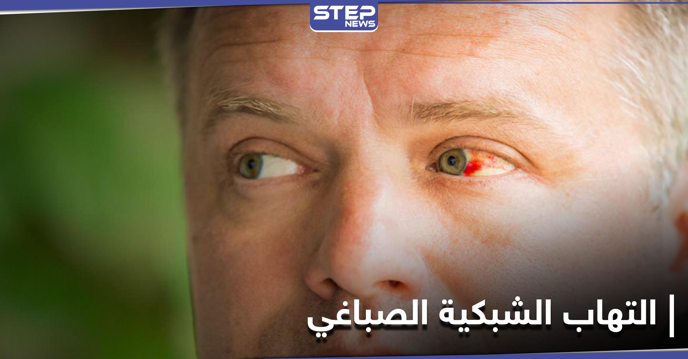 أخطر الإصابات العينية.. التهاب الشبكية الصباغي تعرف إلى أعراضه وعلاجاته