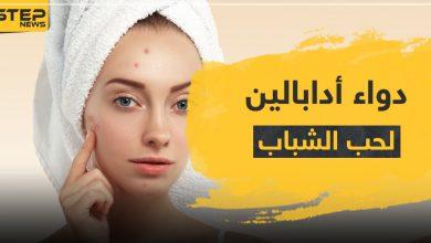 acne 207032021