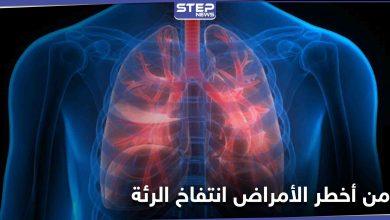 من أعراضه ضيق التنفس والإرهاق المستمر تعرف على مرض انتفاخ الرئة وطرق علاجه
