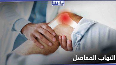 تعرف على أفضل الطرق لعلاج التهاب المفاصل وأسبابه والأعراض الشائعة له