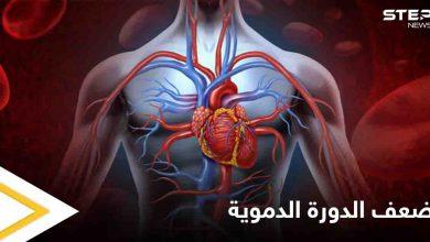 8 علامات وأعراض لضعف الدورة الدموية وأثرها على عمل الكلى وأعضاء أخرى