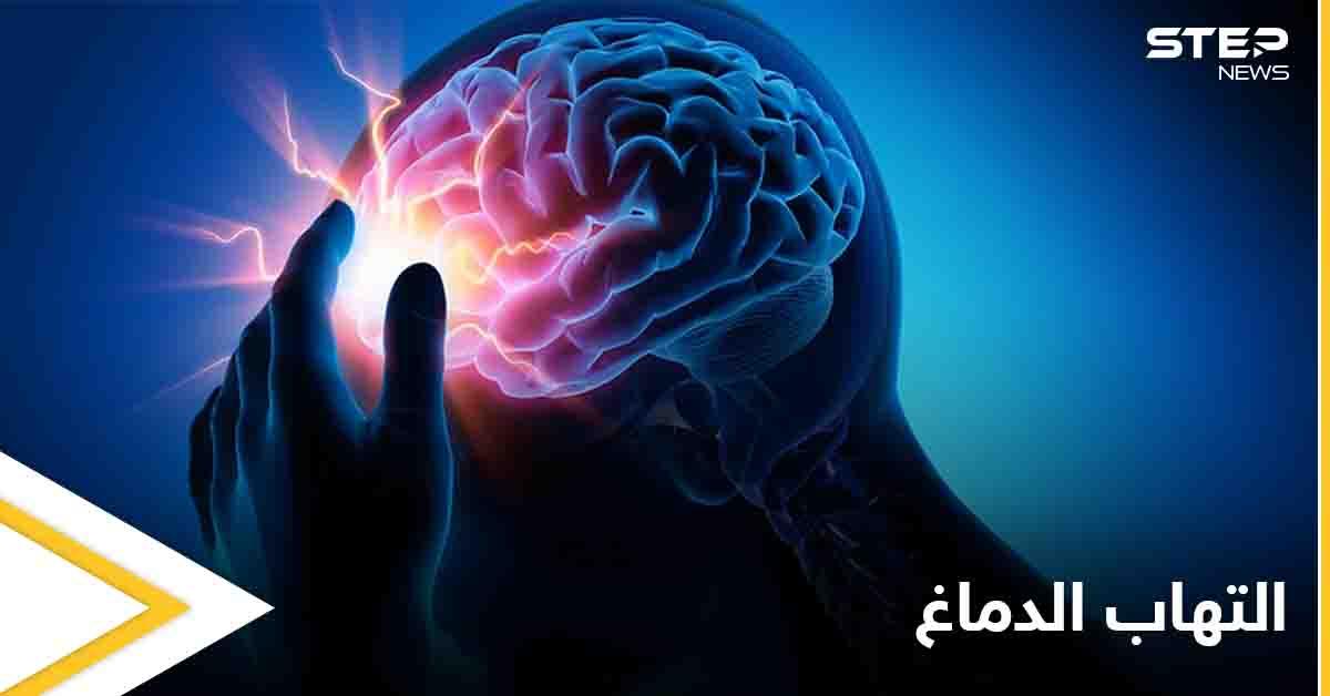 تعرف على مرض التهاب الدماغ ومخاطره الصحية وكيفية الوقاية منه