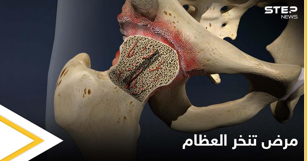 ما هو تنخر العظام