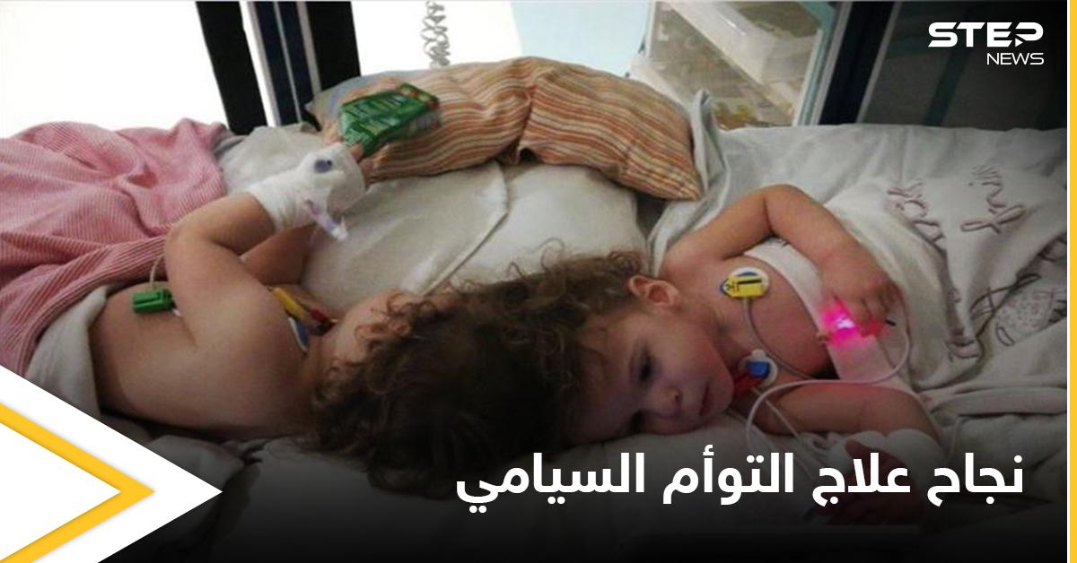 في حالة طبية نادرة.. نجاح علاج التوأم السيامي التركي وقدرتهما على المشي ومصادر تكشف التفاصيل