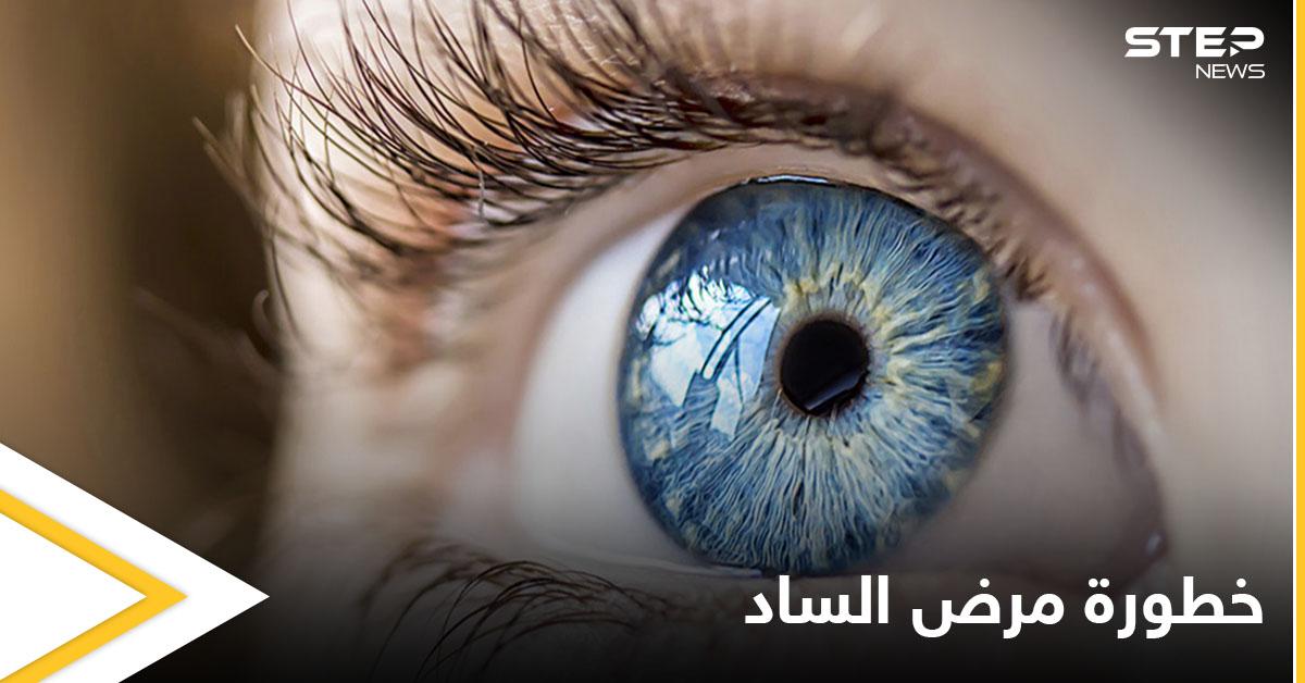 أكثر أمراض العين خبثاً.. ما هو مرض الساد وماهي أسبابه إليك التفاصيل