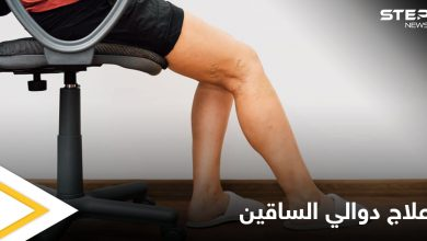تعرف على أهم الوصفات الطبيعية لعلاج دوالي الساقين