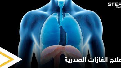 علاج الغازات الصدرية في المنزل وعلاقتها بآلام القلب إليك أهم المعلومات