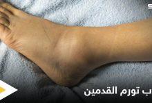 تعرف على أسباب تورم القدمين عند الرجال الأمراض المرتبطة بها
