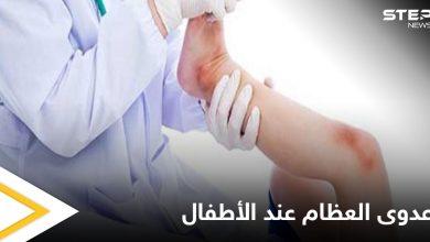 هل تصل الجراثيم إلى العظام وماهي عدوى العظام والمفاصل وخطورتها على الأطفال إليك أهم المعلومات