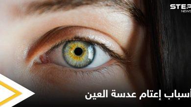 التدخن أحد أسبابه.. إعتام عدسة العين وخطورته وأبرز المسببات لحدوثه إليك اهم المعلومات