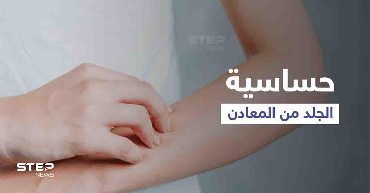 ما هي حساسية الجلد من المعادن