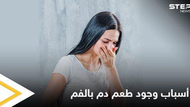 منها بعض الأمراض.. أسباب وجود طعم دم في الفم ونصائح للتخلص منه