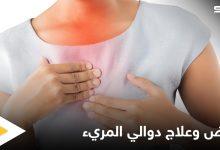 ما هي دوالي المريء وأعراضها وطرق علاجها إليك أهم المعلومات