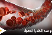 أسباب ارتفاع عدد خلايا الدم الحمراء والمشاكل الصحية المرتبطة بها